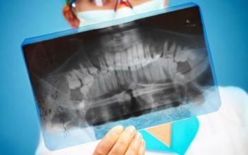 Можно или нельзя делать рентген во время месячных?