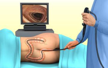 Можно ли во время месячных делать колоноскопию