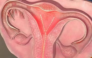 Характер менструации после лапароскопической операции